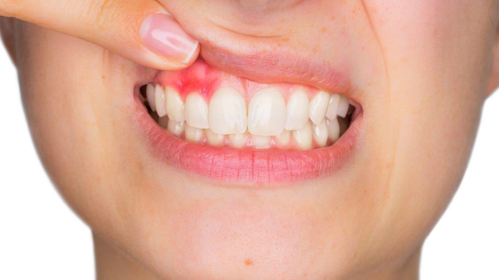 سرطان دهان ، حلق و بینی