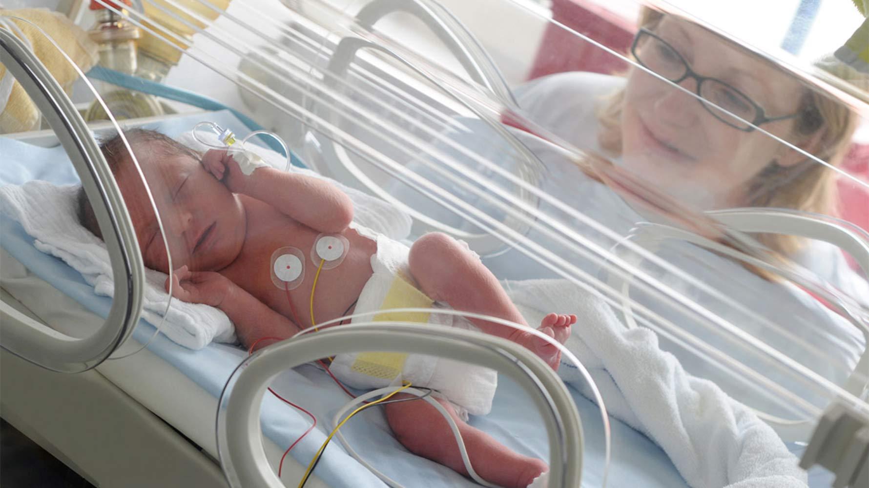 لوله تغذیه در بخش مراقبتهای ویژه نوزادان (NICU)
