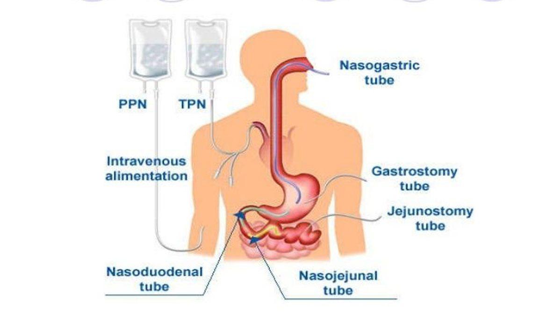 انواع لوله تغذیه برای تغذیه داخلی