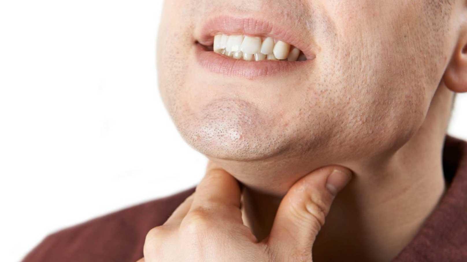 آنچه باید در مورد زخم های گلو بدانید