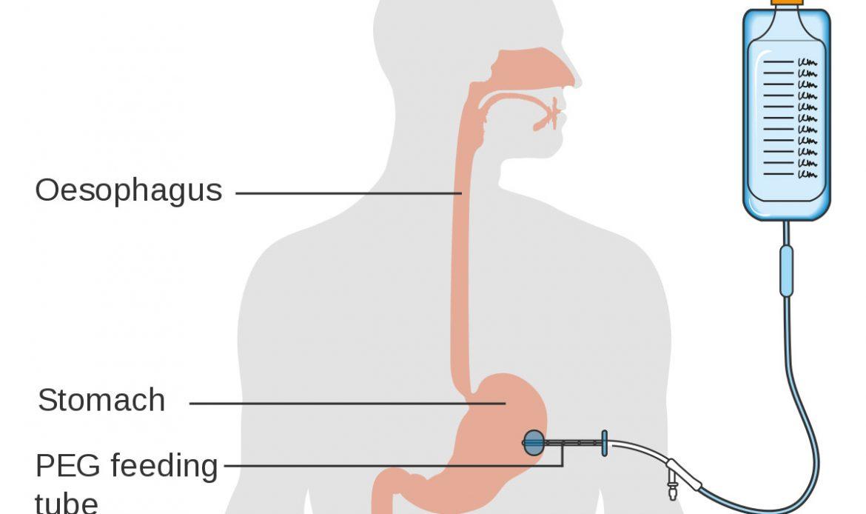 لوله پک PEG یا گاستروستومی