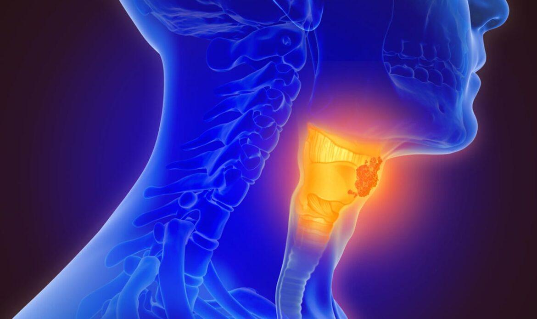 درمان دیسفاژی اوروفارنژیال
