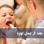 بلع بعد از عمل لوزه